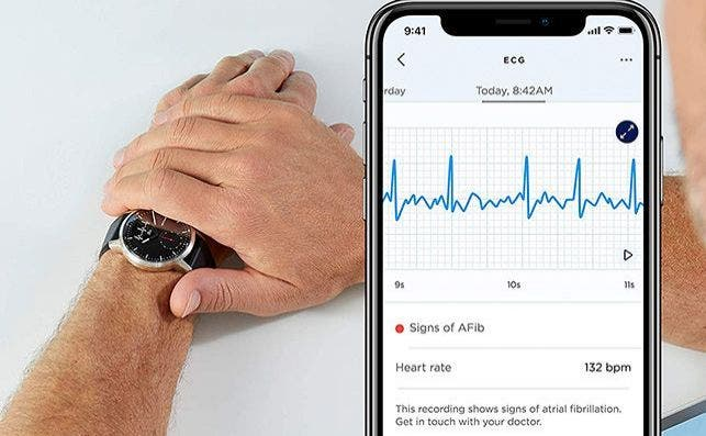 withings scanwatch mn amazon